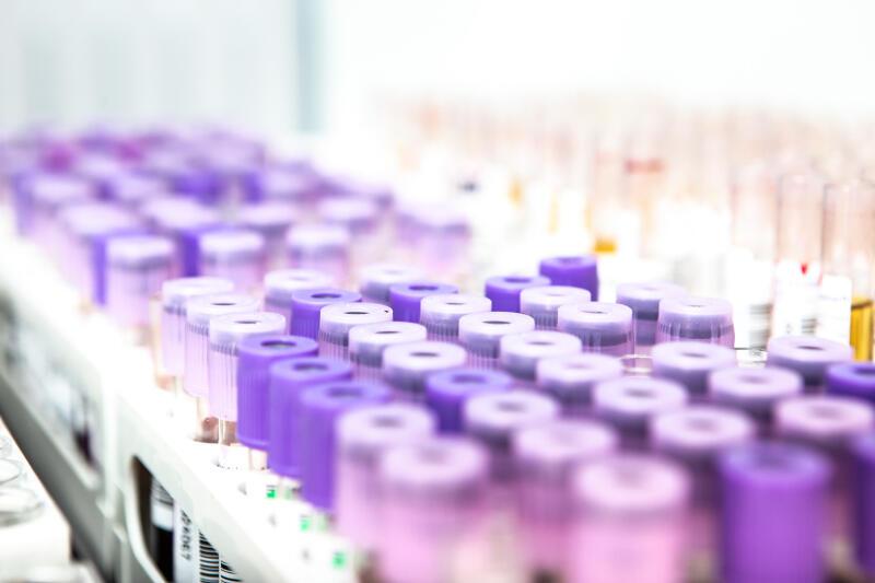 Na Pomorzu od początku epidemii do 1 kwietnia 2020 roku wykonano 1 892 testy, w Polsce w tym samym czasie 51 500 testów