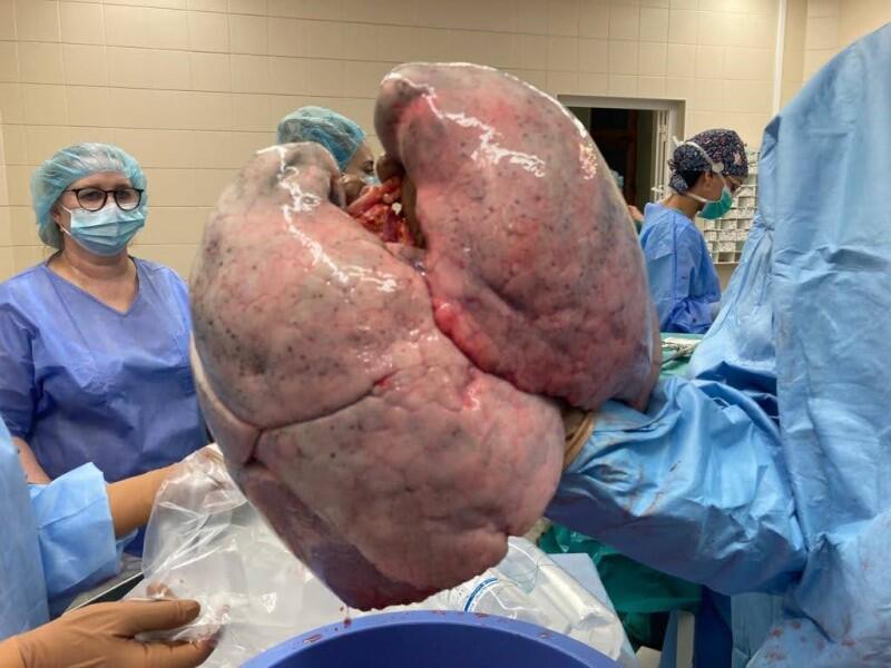 Płuca, fragment ręki lekarza