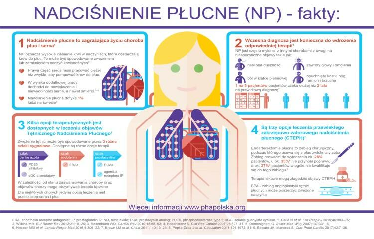 Nadciśnienie płucne - fakty